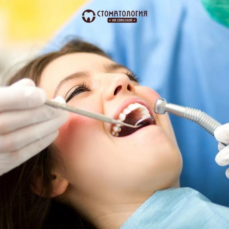 Терапевтическая стоматология в Кирове
